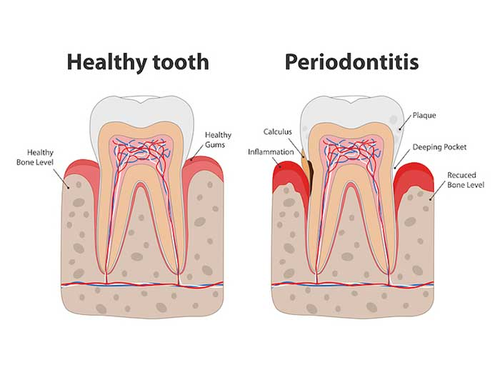 Image of a healthy tooth and periodontitis tooth